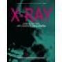 X-Ray Por Ben Harris Y Steve Shufton