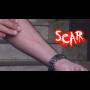 Scar Por:Dan Alex/DESCARGA DE VIDEO